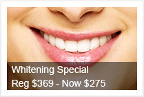 Teeth Whitening Special Offer